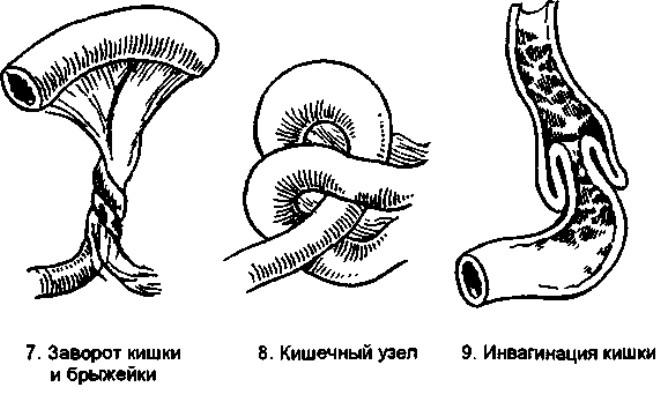 zavorot-kishki-u-rebenka