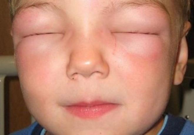 Отек Квинке у детей: причини, симптоми, первая помощь, лечение, осложнения