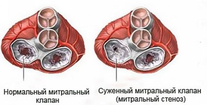 симптомы стеноза митрального клапана