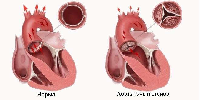 аортальный стеноз у детей симптомы