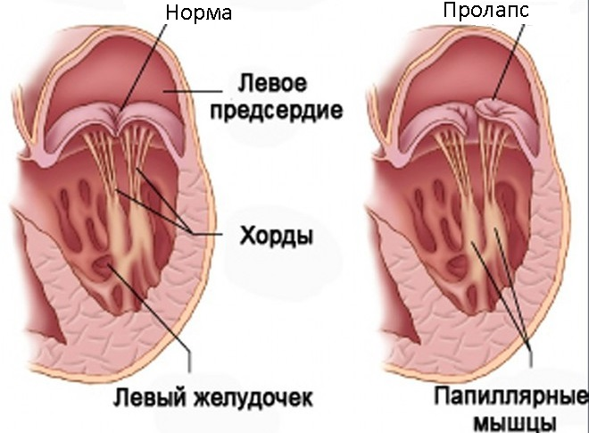 пролапс клапана симптомы
