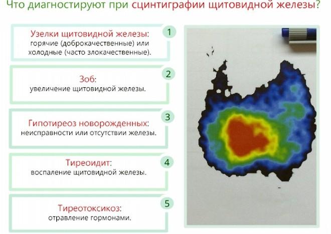 диагностика базедовой болезни
