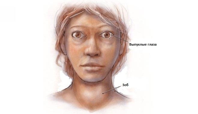 симптомы болезни грейвса