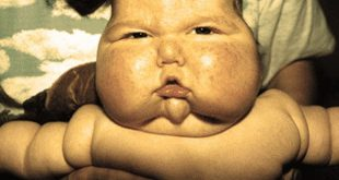 Синдром Иценко-Кушинга у детей