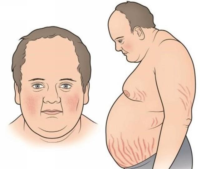 simptomi-icenko-kushinga