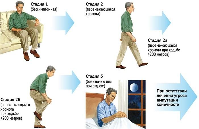 перемежающаяся хромота симптомы лечение