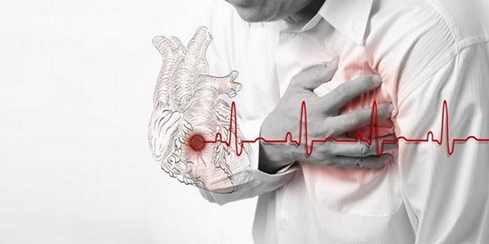 В каком возрасте случаются инфаркты