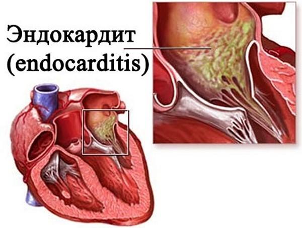 симптомы эндокардита у детей
