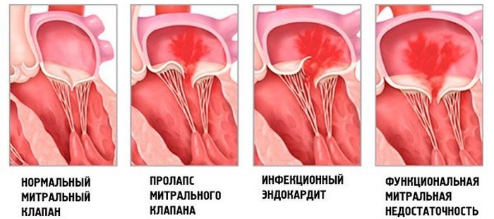 Дисфункция митрального клапана у детей