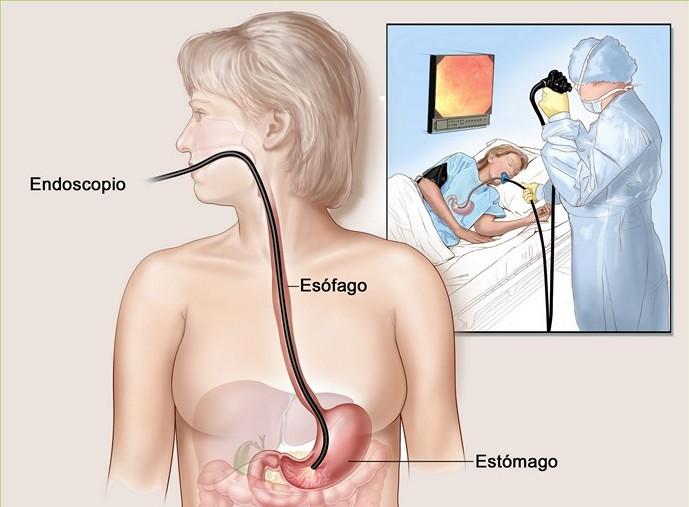 рак желудка диагностика
