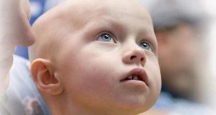 Рак почки у детей
