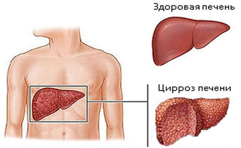 рак печени с метастазами