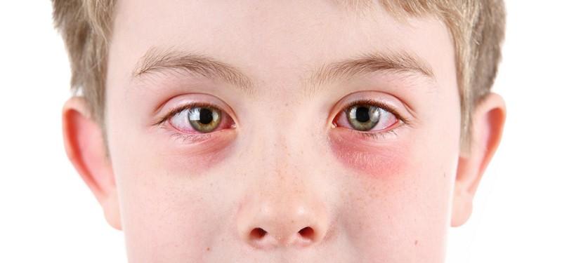 как закапать альбуцид ребенку