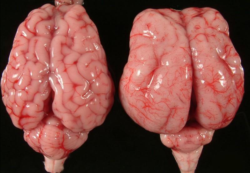 гипоплазия червя мозжечка у ребенка лечение