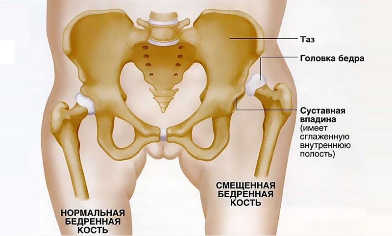 Недоразвитый бедренный сустав у новорожденного миллениум нео коллоидный раствор для суставов цена