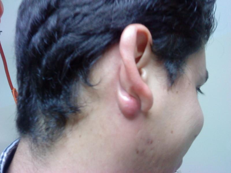 дермоидная киста за ухом