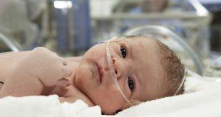 Кровоизлияние в мозг у новорожденных
