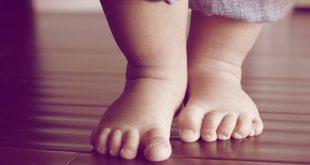 Массаж при косолапости у детей