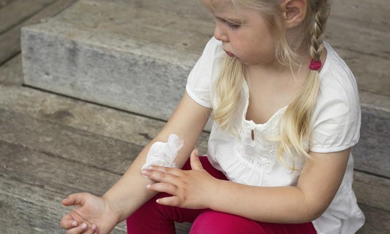 микоз у детей профилактика