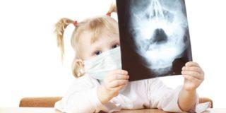 Симптомы и лечение гайморита у детей в домашних условиях