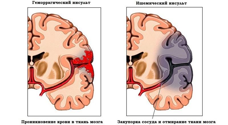 кровоизлияние в мозг у новорожденных симптомы