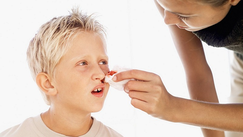 причины кровотечения из носа