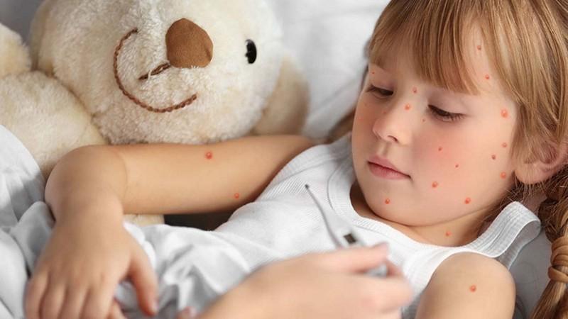 отказ от прививки против кори