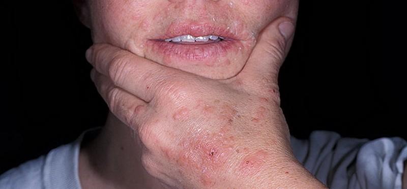 экссудативная эритема