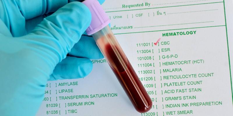 Повышен гематокрит у ребенка в крови: причины отклонения от нормы