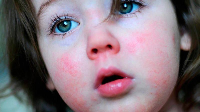 При каких инфекционных болезнях возникает белый налет