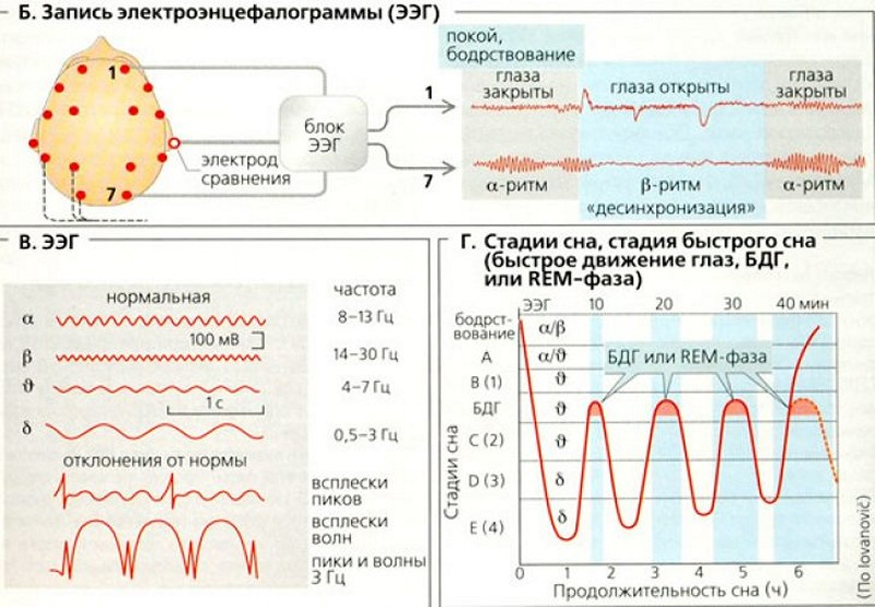 Расшифровкаэлектроэнцефалограммы