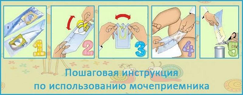 Эпителий плоский в анализе мочи у ребенка