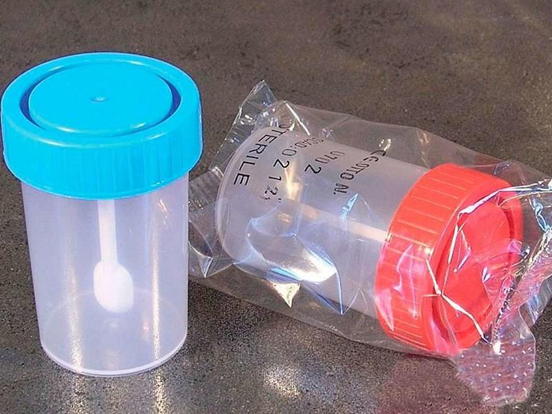 Анализ крови перед прививкой гепатит в