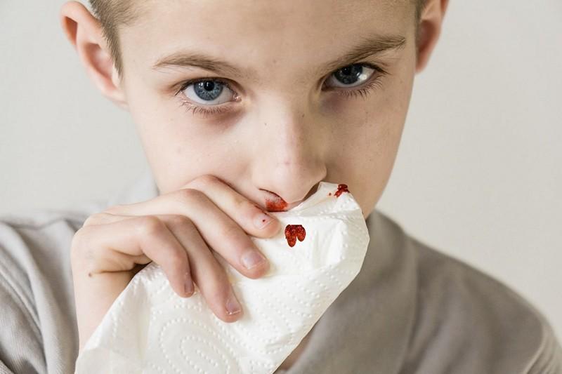 лечение гемофилии