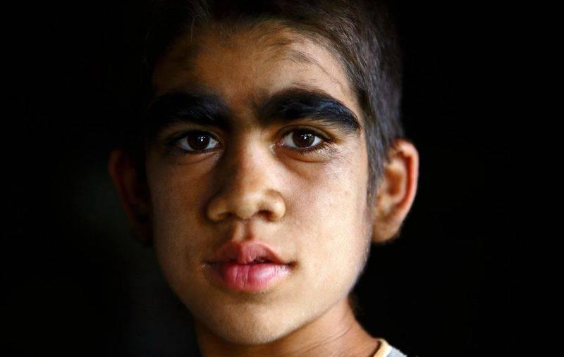 адрогенитальный синдром у мальчика
