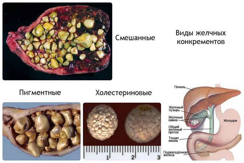 Причины и лечение желчнокаменной болезни у ребенка