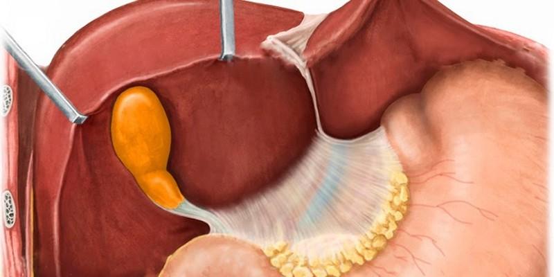 Симптомы и лечение загиба желчного пузыря у ребенка
